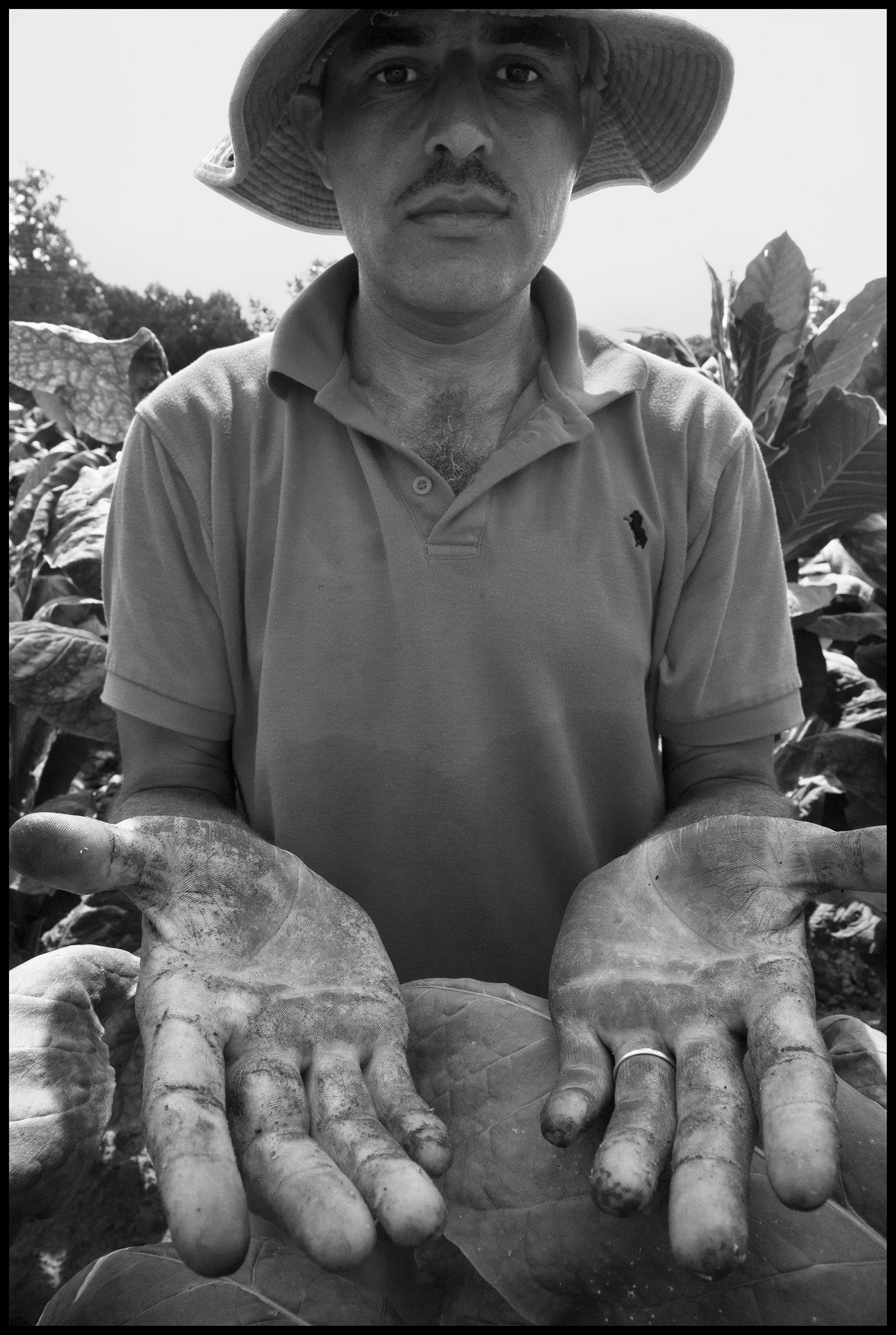Tobacco farmer shows his injured hands